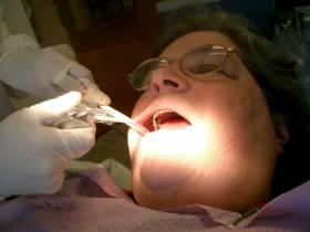 כאב שיניים על רקע נוירולוגי - Trigeminal Neuralgia