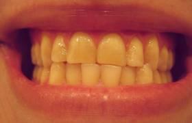 נזקי עישון בחלל הפה